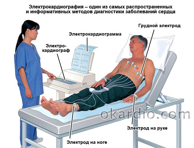 Синусовая аритмия сердца: что это такое, описание, код по мкб 10 и что он значит, причины и симптомы заболевания у взрослых, виды, чем опасны осложнения