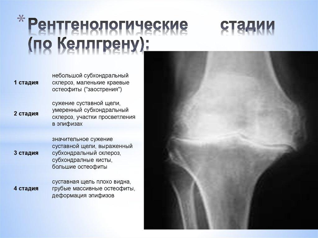 Остеоартроз суставов: симптомы, причины, лечение и стадии