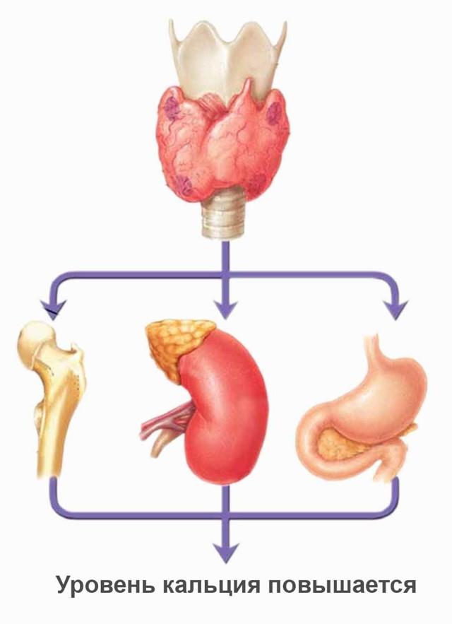 Гипертиреоз: причины, симптомы и лечение