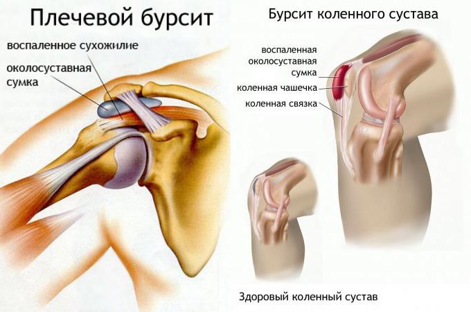 Бурсит плечевого сустава: причины возникновения и все о лечении
