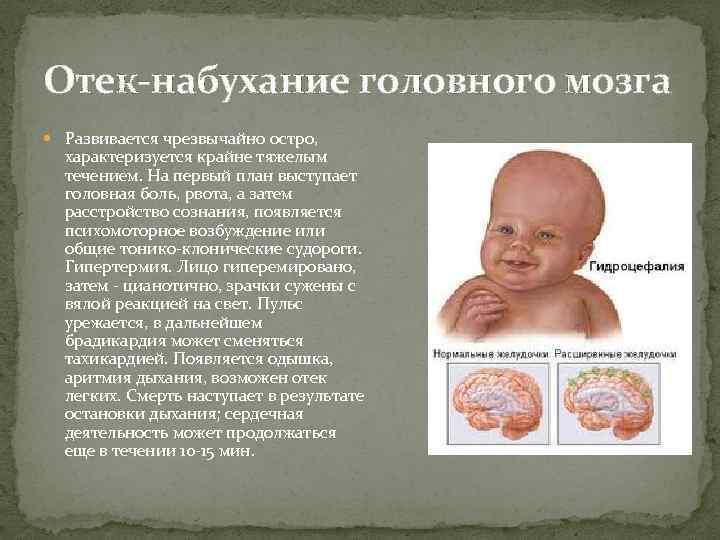 Отёк мозга — википедия. что такое отёк мозга