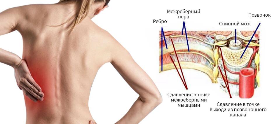 Что такое невралгия: симптомы, причины и лечение болезни — net-bolezniam.ru