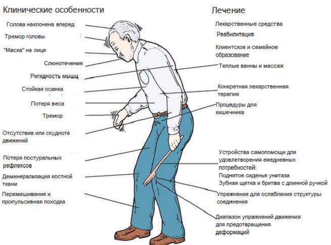 Болезнь паркинсона: симптомы, причины, профилактика