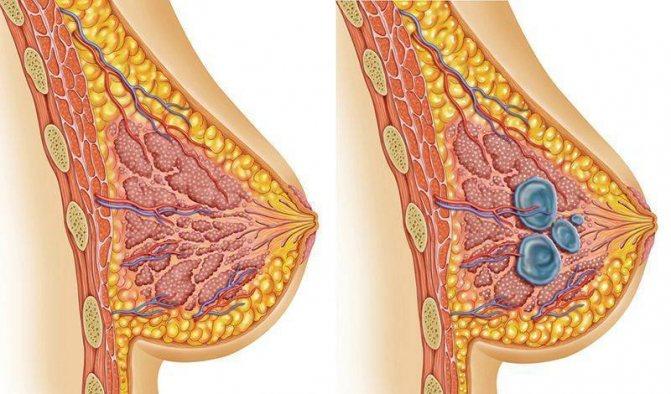 Фиброзно-кистозная мастопатия: диагностика и лечение | пункция молочной железы в санкт-петербурге