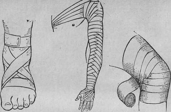Десмургия - это учение о повязках и методах их наложения. перевязочный материал: виды и классификация по назначению
