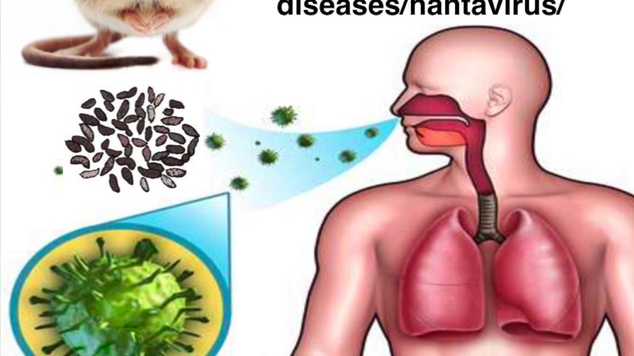 Новый хантавирус: характерные симптомы заболевания - 1rre