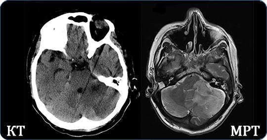Современные методы диагностики патологии внутренних органов – в чем разница между кт и мрт?