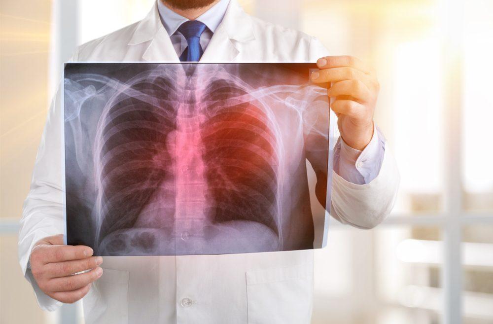 Внебольничная пневмония - причины, диагностика и лечение