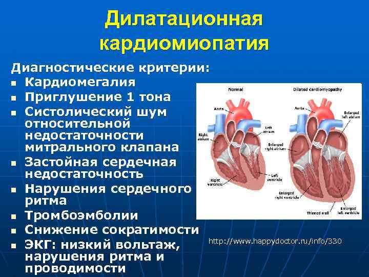 Кардиомегалия что это - здоров.сердцем