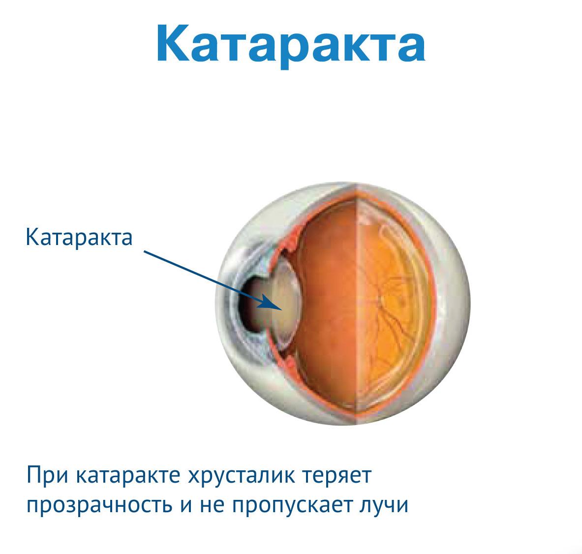 Вам поставили диагноз катаракта глаза? что это такое и как жить дальше