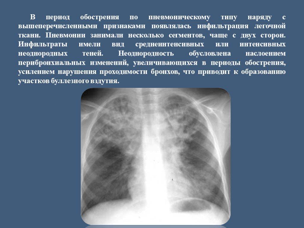 Что такое инфильтрация лёгочной ткани