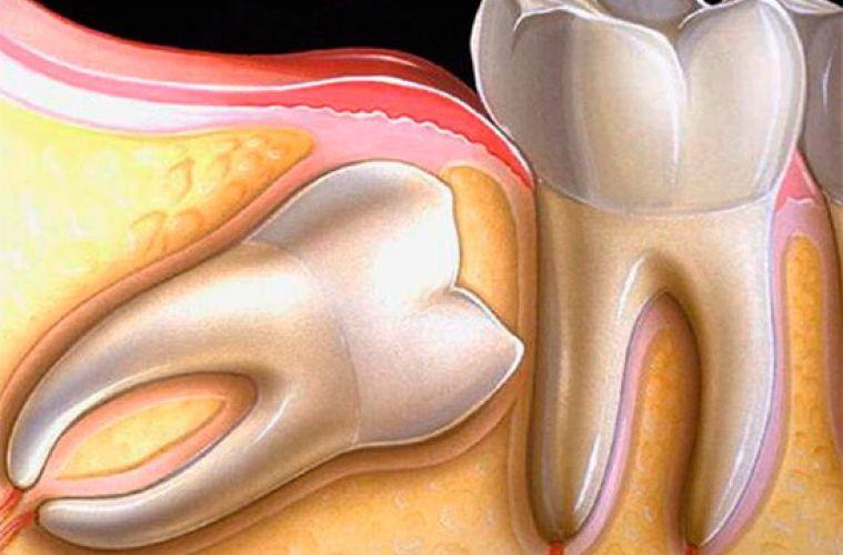 Ретинированный зуб мудрости: особенности строения и этапы удаления