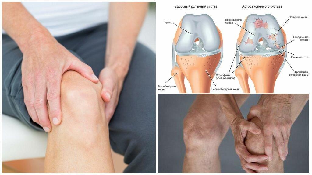 Гонартроз 2 степени коленного сустава - лечение, упражнения и физиопроцедуры