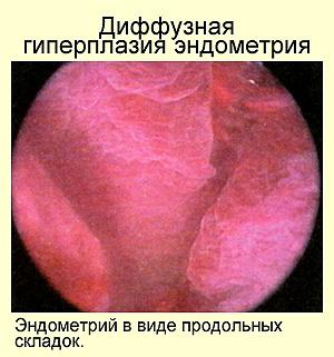 Гиперплазия эндометрия: что важно знать