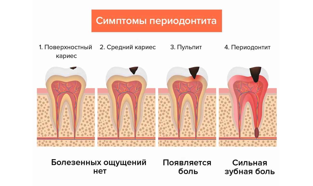 Пульпит зуба, что это такое и как его вылечить?