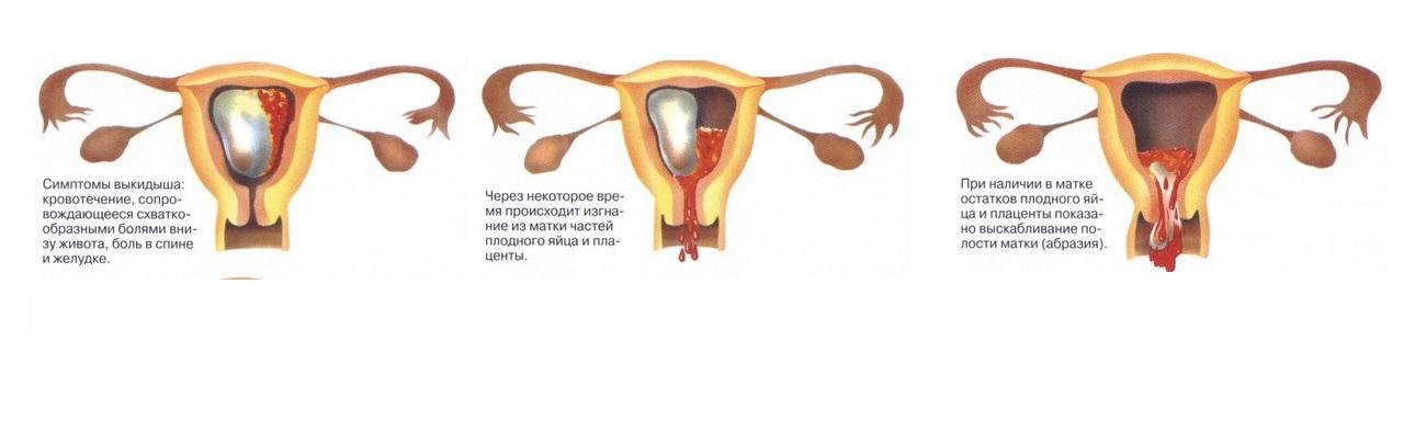 Что такое замершая беременность? признаки, симптомы и лечение