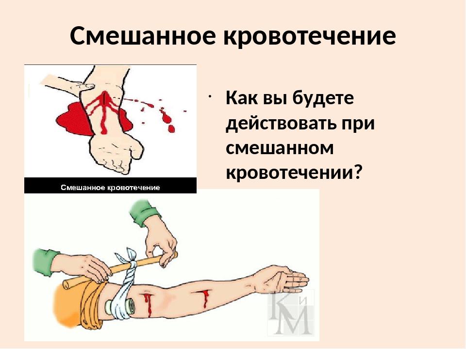 Как остановить смешанное кровотечение
