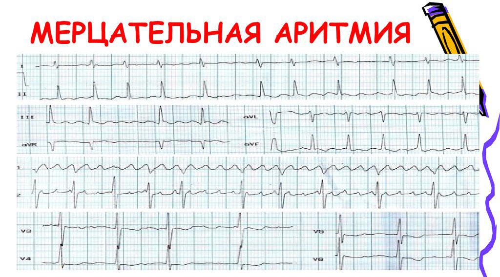 Как проявляется мерцательная аритмия