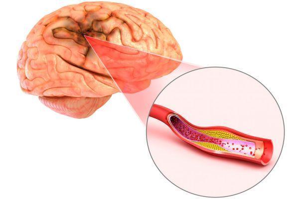 Лечение церебрального атеросклероза сосудов головного мозга: лекарствами и народными средствами