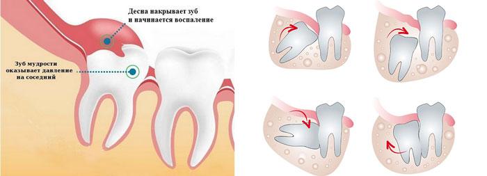 Растёт зуб мудрости: симптомы роста и как снять боль