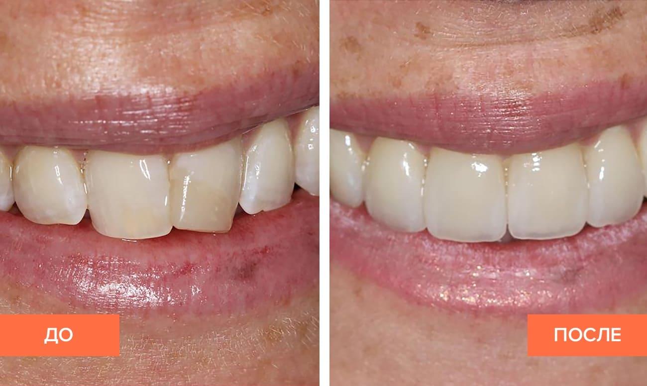 Какие коронки лучше ставить на жевательные зубы – отзывы, цена, фото