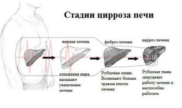 Цирроз печени в стадии декомпенсации: что это такое, симптомы, лечение и прогноз