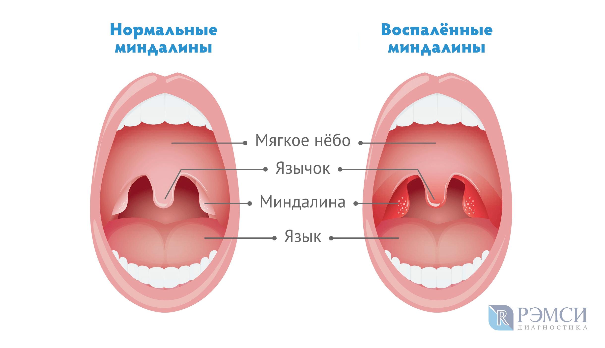 Простуда - лечение, лекарства, первые признаки и осложнения простуды