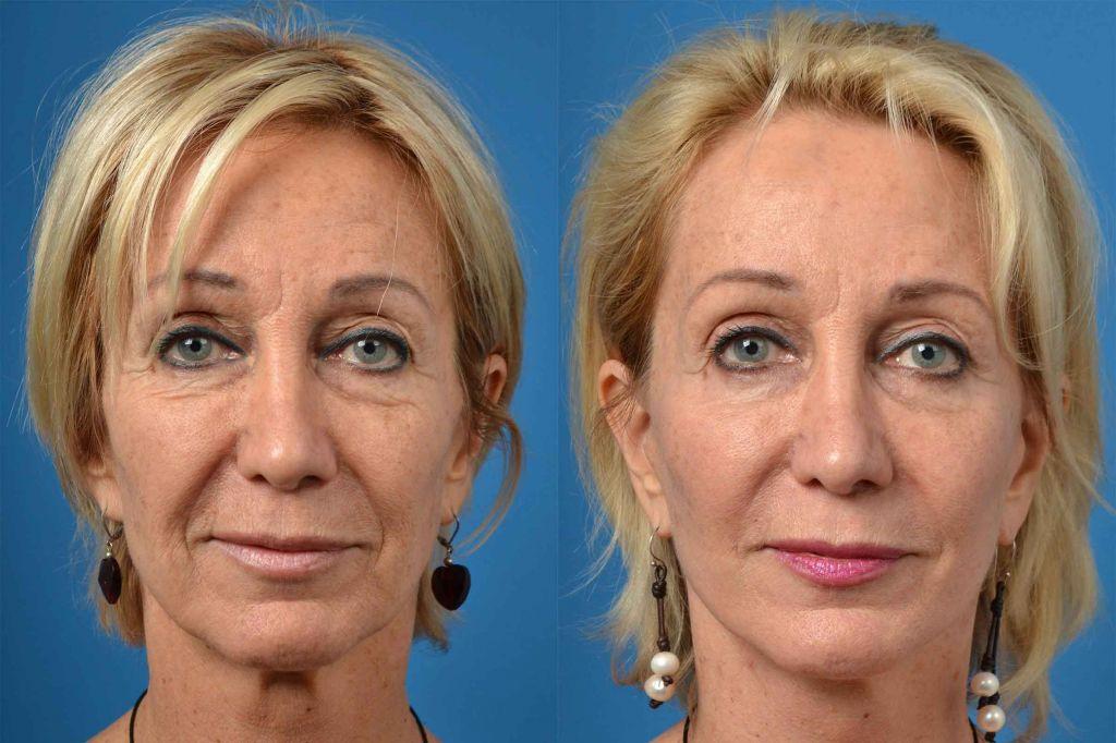 Биоревитализация лица: эффект до и после, сколько процедур нужно сделать | poudre.ru