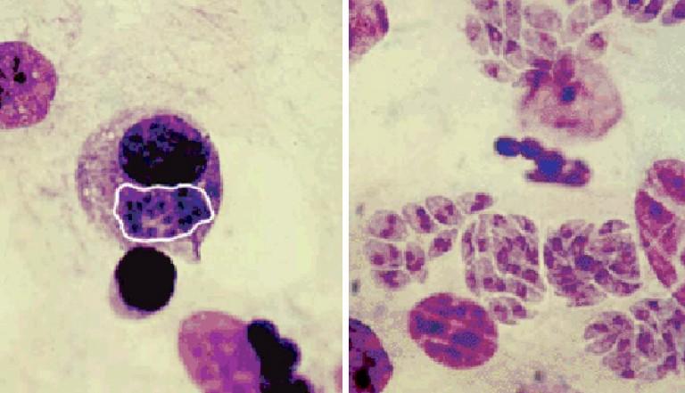 Токсоплазмоз: чем лечить, лучшие препараты и средства