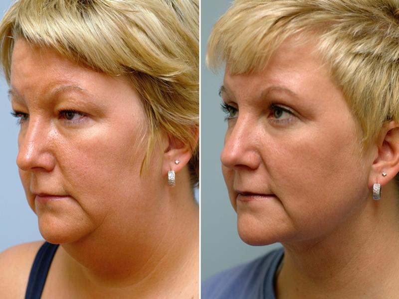 Почему появляются брыли на лице и как их убрать? - idealplastic.ru