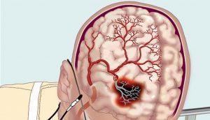 Что такое цереброваскулярная болезнь или недостаточность