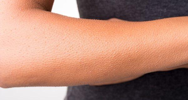 Гусиная кожа: симптомы и причины кератоза, способы лечения; как убрать пупырышки на теле
