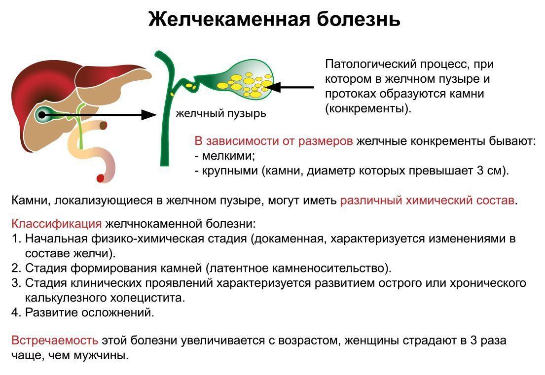 Билиарный сладж: причины, признаки, лечение, профилактика