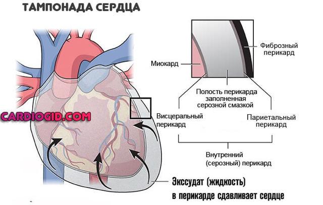 Тампонада сердца | eurolab | кардиология