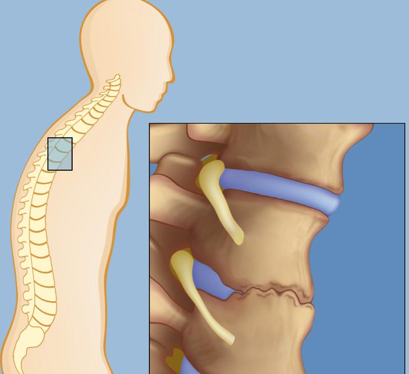 Болезнь бехтерева (анкилозирующий спондилит): что это такое, симптомы, лечение, фото