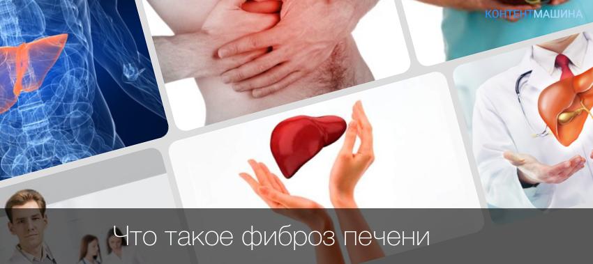 Фиброз печени 1 степени: причины, симптомы, лечение и прогноз