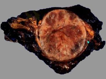 Феохромоцитома: понятие, течение и симптомы, выявление, лечение