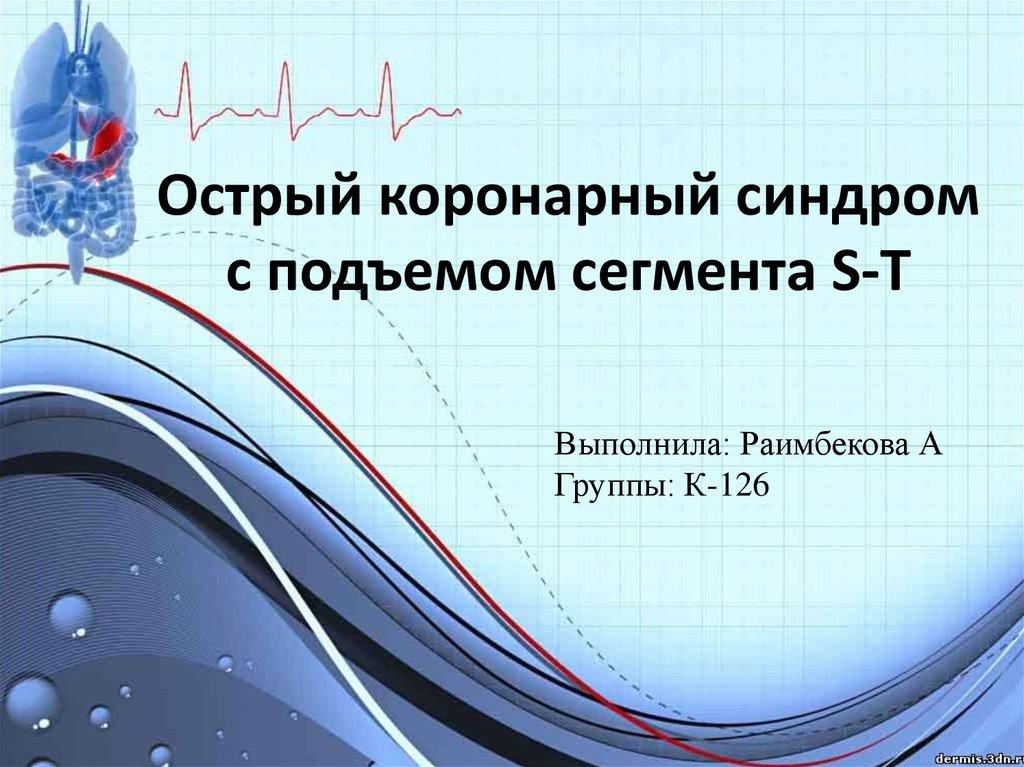 Острый коронарный синдром | симптомы и лечение острого коронарного синдрома | компетентно о здоровье на ilive