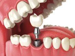 Современное протезирование зубов — все о зубных протезах и инновациях