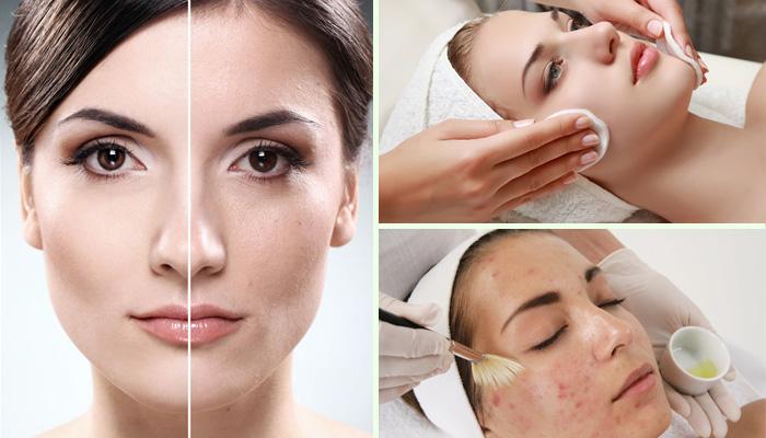 Гоммаж для лица: косметолог рассказала, для чего нужно средство и как его использовать