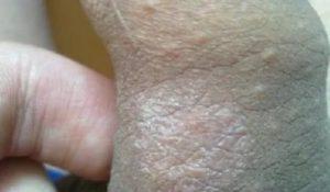 Белый налет на головке у мужчин: фото, причины, лечение