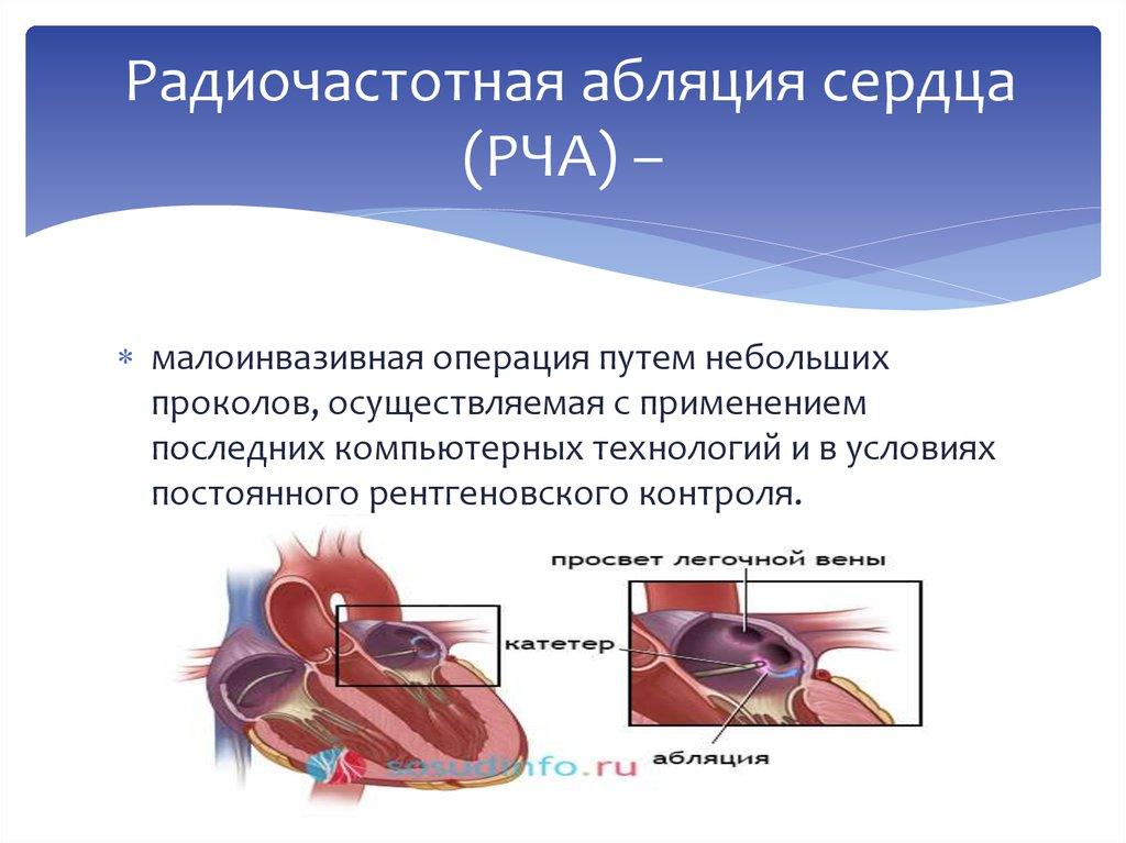 Радиочастотная абляция сердца (рча): что это такое, показания и противопоказания, реабилитация после операции