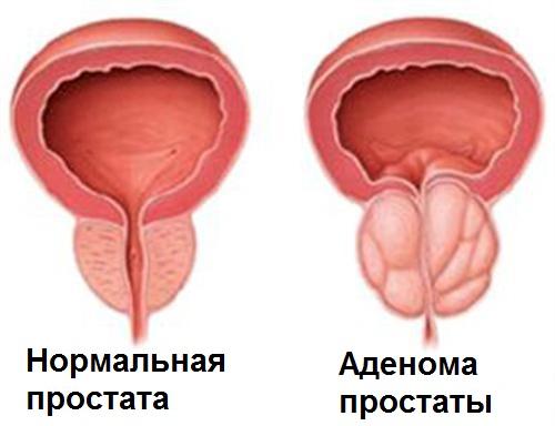 Аденома простаты у мужчин:что такое гиперплазия,от чего возникает, симптомы и первые признаки у мужчин,лечениепростатита и аденомы предстательной железы | prostatitaid.ru