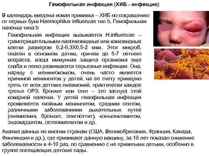 Все о гемофильной инфекции