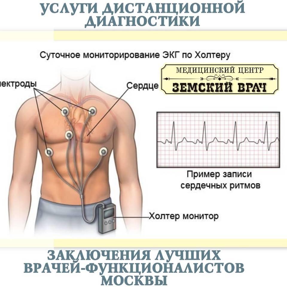 Холтер (мониторинг сердца) - описание процедуры и показания