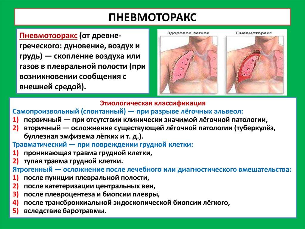 Гидроторакс легких - лечение, причины, признаки гидроторакса