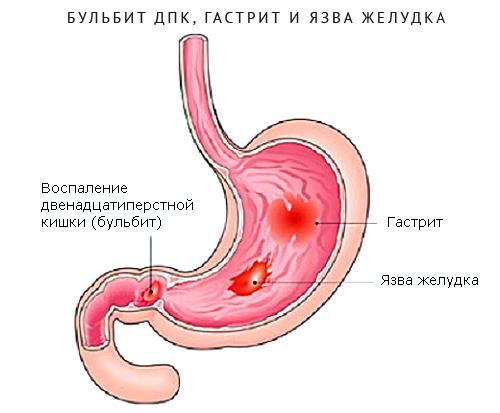 Бульбит желудка: что это такое, симптомы и лечение в домашних условиях у взрослых