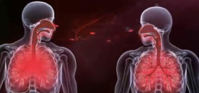 Туберкулома легких: что это, причины и последствия | плюсы и минусы