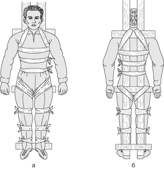 4.2. переломы костей конечностей, транспортная иммобилизация