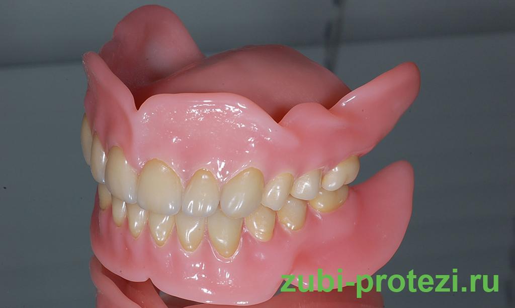 Какие бывают зубные протезы и как выбрать лучший вариант